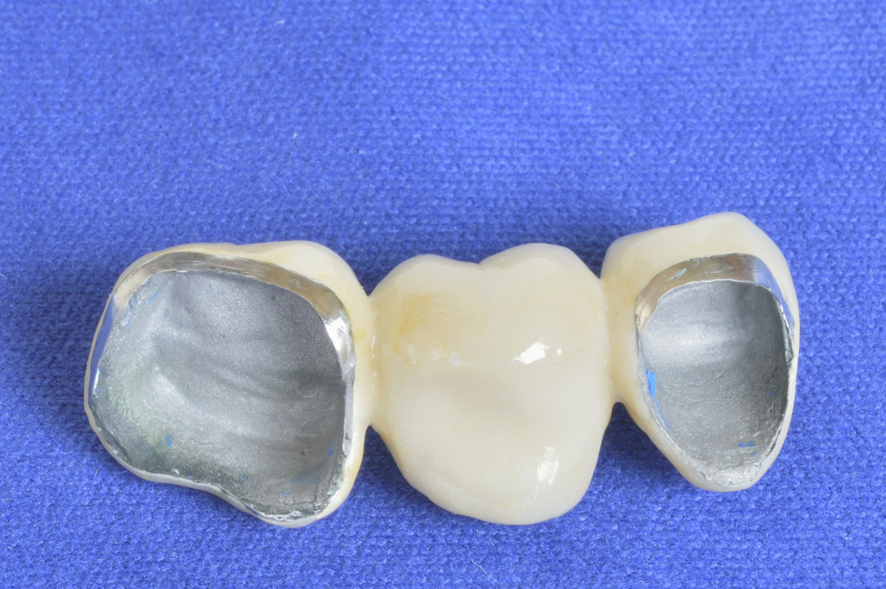 During That Time Dentists Around The World Have Adopted PFM Crowns And Bridges